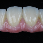 FPD with Gingival Porcelain