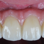 Insertion FPD with Gingival Porcelain