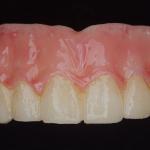 DELUXE High Strength Denture