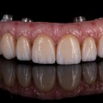 Hybrid Trinia /All ceramic crowns
